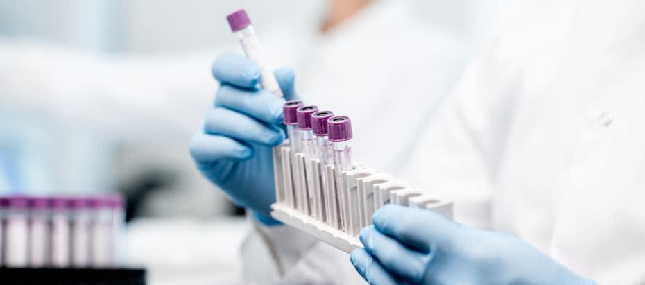Aandeel Novacyt beleggen coronavirus